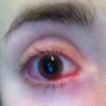 Right eye. Much whiter than the left eye looked at this point. (Day 1.)