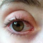 Right eye. (Day 9.)